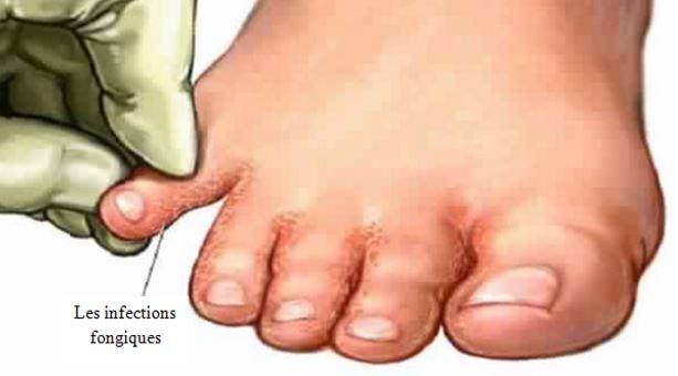 Photo pieds infectio